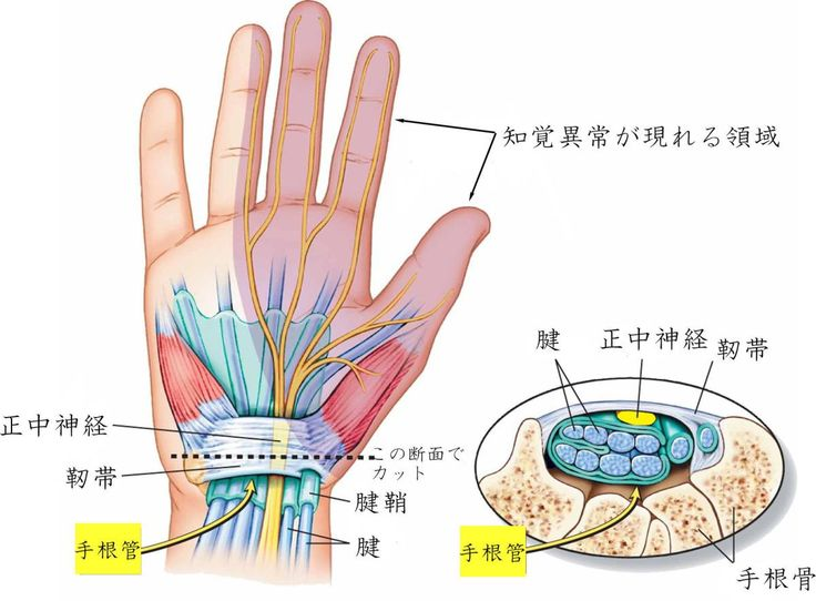 手根管症候群 (Carpal tunnel syndrome)