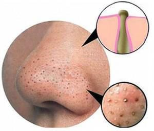 How to we get rid of blackheads and whiteheads - Tips and Tricks