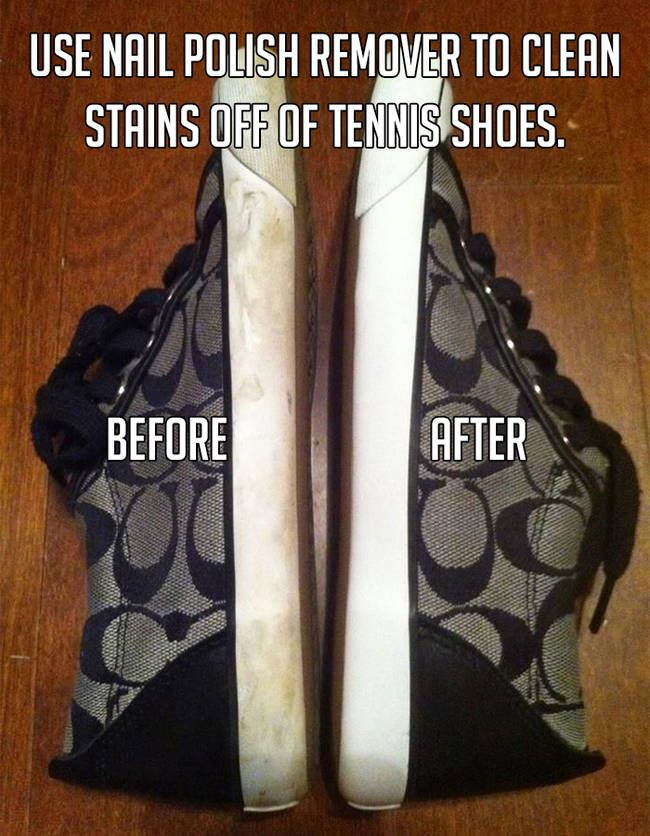 Wipe the whites of your sneakers with nail polish remover to remove scuffs and stains. Rinse with a damp cloth to remove any residue.