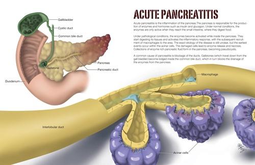 Acute Pancreatitis  (editorial)