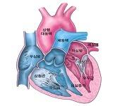 심장판막 질환 Valvular Heart Disease