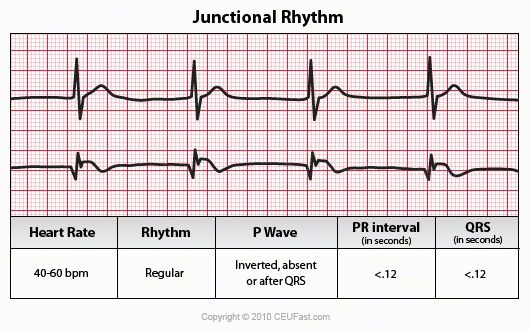ECG - Nursing CEU course -- but provides a great review of EKG with great summary images.