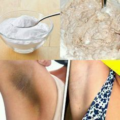 Elimina las manchas oscuras de las axilas y entrepiernas en solo 15 días con este remedio casero. – Algo Interesante