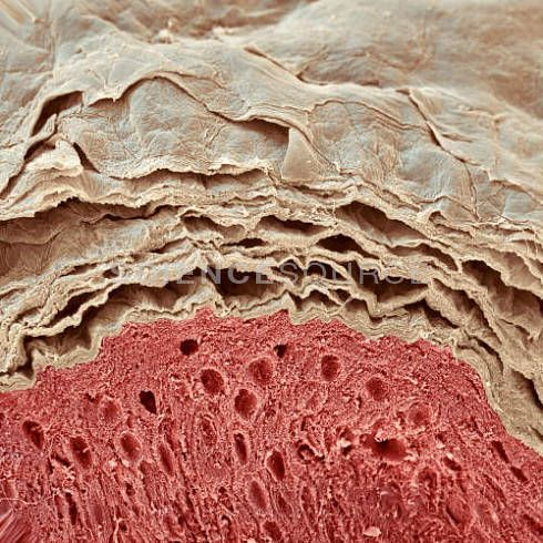 SEM of Human Skin. The top layer of the epidermis is composed of flattened, dead skin cells that form the surface of the skin. The dead cells from this layer are continuously being shed and replaced by cells from the living epidermal layer below it (red). The lowest layer (not seen here) is the dermis. The skin is the body's largest organ, accounting for around 15% of the body's weight.  © Eye of Science/Science Source #sem #micrograph #skin #medical #sciencephotos #stockimages…