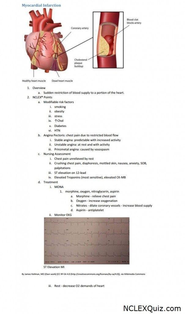 Best 25+ Myocardial infarction ideas on Pinterest