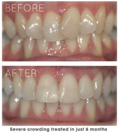 A straight smile in just 4-6 months?! The beauty of Cfast clear braces here at Smileworks