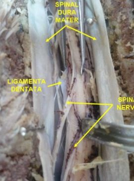Here is Inter-Structural Fascia, Structural #Fascia and Visceral Fascia found inside and around the spine. The Spinal Fascia is special because it is fibrously dense and encases the spinal cord like a thick straw. The other types of fascia connect to this straw-like casing and burst out like sunbeams through the abdominal cavity. Understanding how to impact this deep fascia can dramatically aide in the treatment of back pain related to the narrowing of this column. www.FasciaBlaster.com