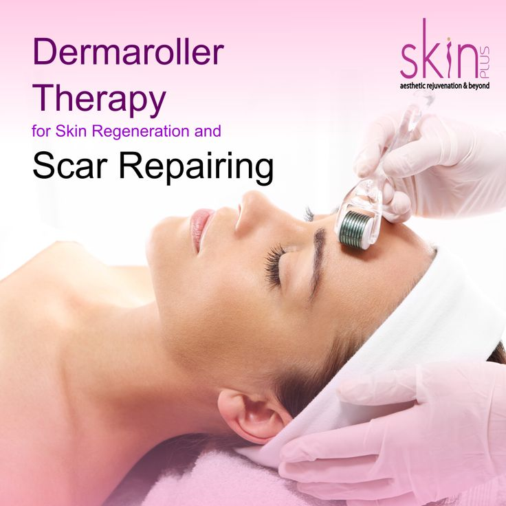 You can get rejuvenated skin and a scar free face by using a dermaroller. Dermaroller therapy is a new technique which helps to stimulate collagen quite significantly to reduce the appearance of acnescars. At Skin Plus Clinic we provides advanced dermaroller treatment in combination with other therapies such as PRP and chemicalpeeling to derive maximal result.