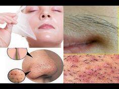 Remover pêlo Facial, cravos e espinhas em casa / Ficar com a pele clara / Máscara de descascar. - YouTube