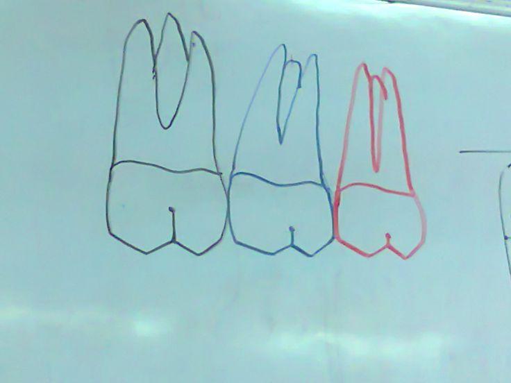 molares maxilares