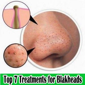 Top 7 Treatments To Help Get Rid Of Blackheads