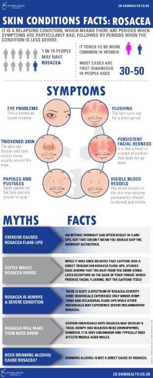 Do you suffer from #rosacea #flushing #facial #redness #medizen #birmingham