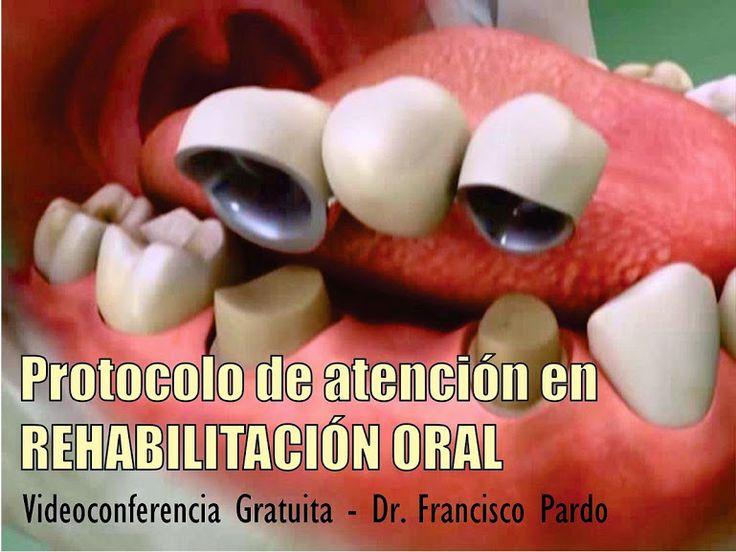 Videoconferencia: Protocolo de atención en la rehabilitación oral - Dr. Francisco Pardo | Odonto-TV