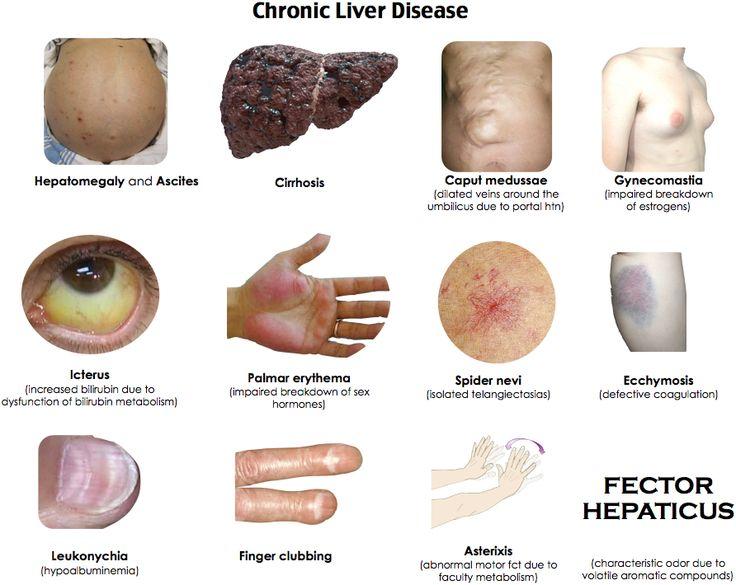 chronic liver disease - stigmata (http://res.cloudinary, Sphenoid