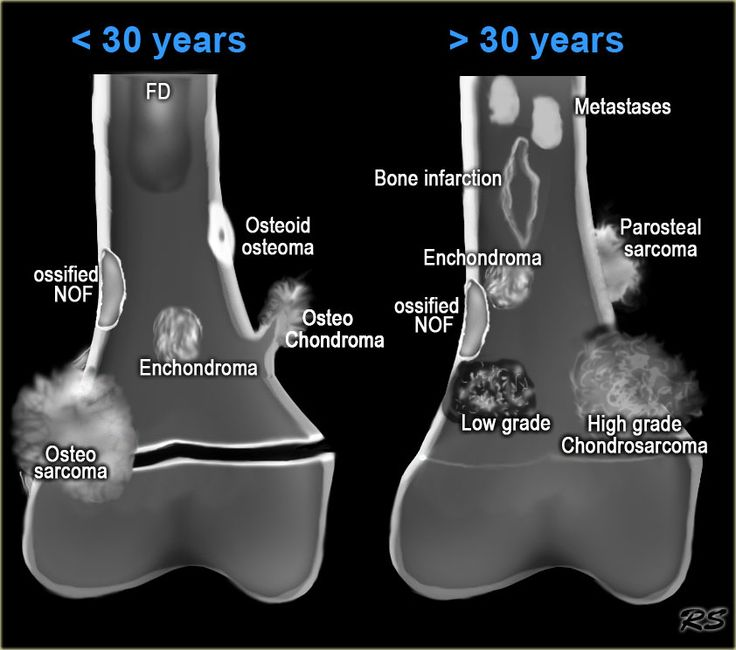 Repined . . . . Radiography.    . Bone Tumors - location & age