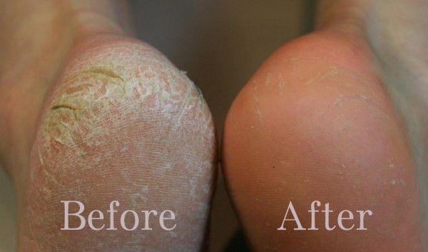 2 Ingredients to Get Rid of Dry, Cracked Heels