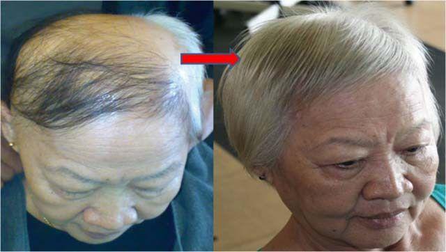 Tegyél néhány csepp szérumot a fejbőrödre...egy kicsit várj...és minden elveszett hajad visszanő...Félelmetes!