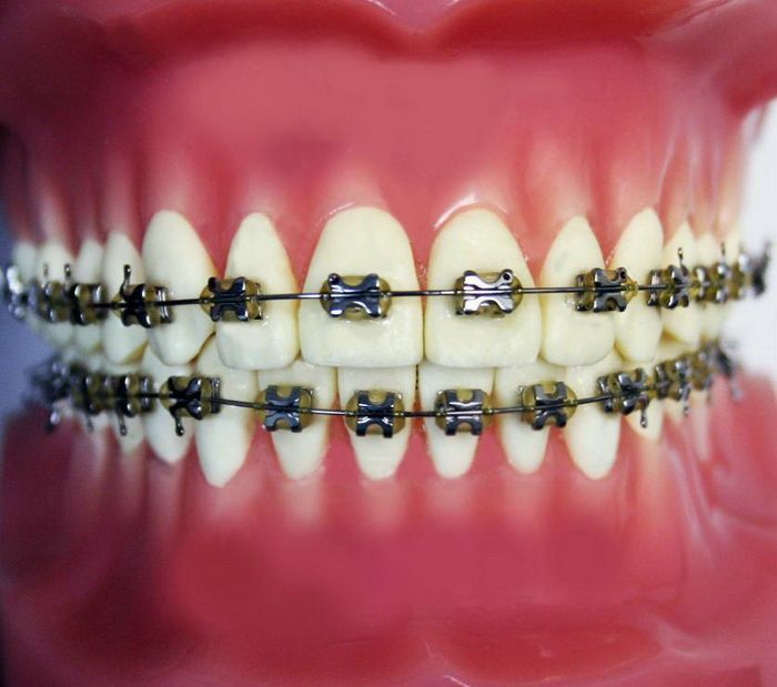 Pictures Of Yellow Braces Braces Pictures Teeth Braces