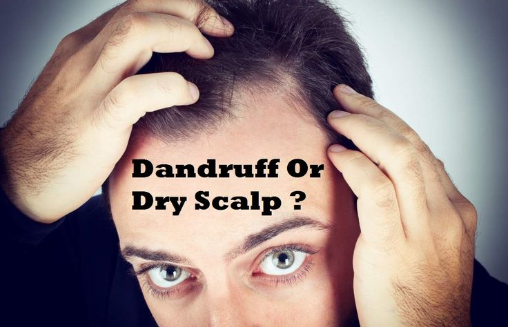 Do you have dandruff or dry scalp? The symptoms and remedies are different.