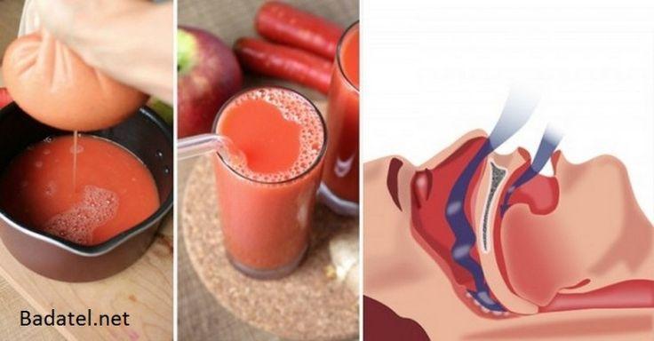 Recept na zmírnění chrápání a spánkové apnoe K výrobě nápoje, který vám pomůže zredukovat hleny v dýchacích cestách budete potřebovat následující ingredience: šťáva z 1/2 citronu 1 zhruba 2 cm dlouhý kousek kořene zázvoru (zázvoru) 2 jablka 2 mrkve POSTUP NA DALŠÍ STRANĚ
