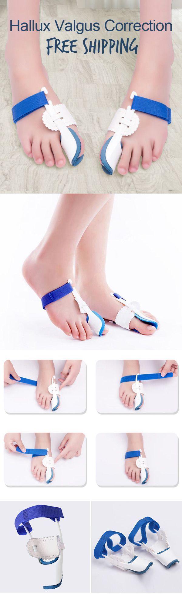 1 Pair Foot Bones Corrector Bunion Device Hallux Valgus Correction Orthopedic Foot Bones Corrector