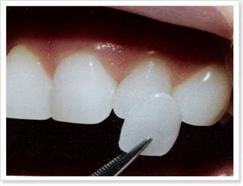 facette en céramique http://www.cosmeticaretravel.com/facettes-dentaires-108.html