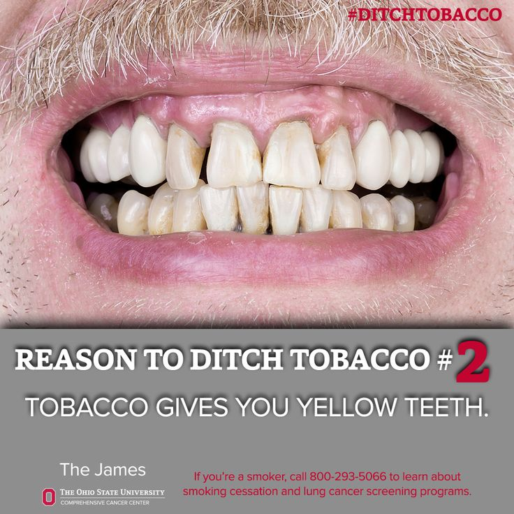 11 Best How To Quit Smoking Info Images On Pinterest