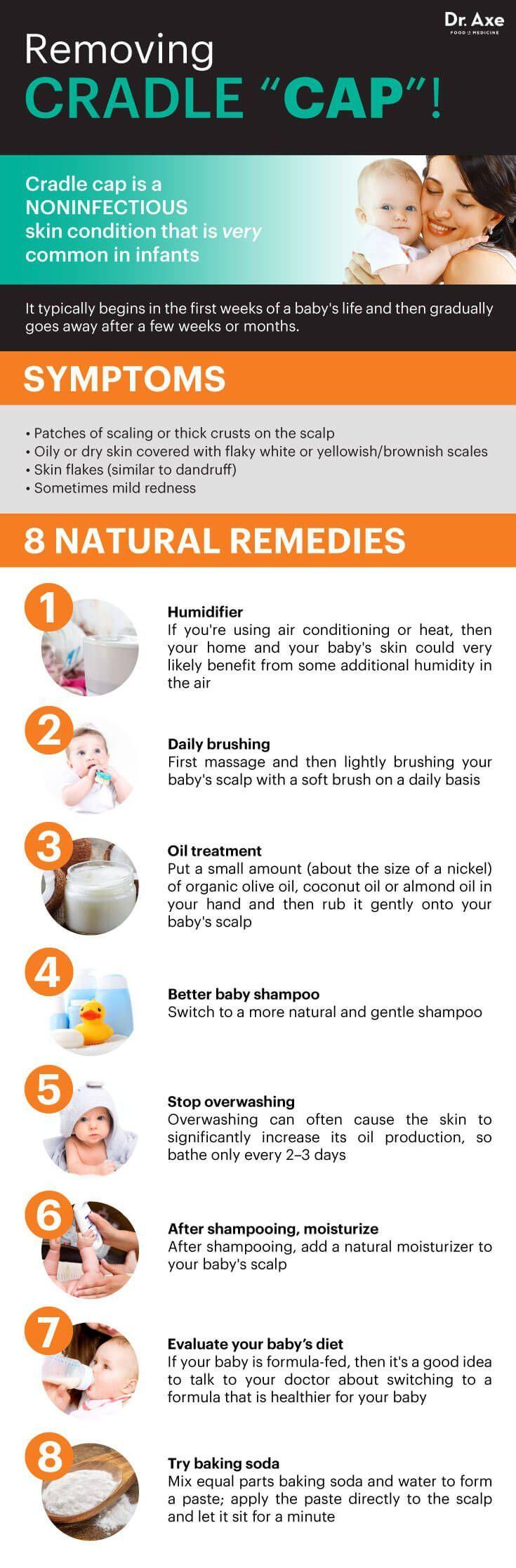 8 Natural Fixes For Cradle Cap Cradle Cap Baby Health Natural Baby