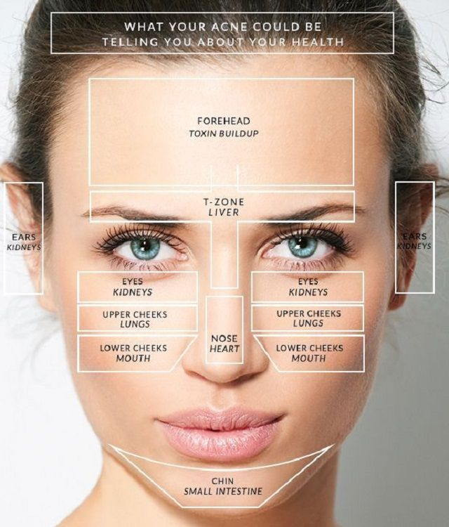 You might be having pimples at different locations of your face, but do you know there is a different reason for acne to occur at different areas on your face? Figure out the reasons that influence the position of pimples.