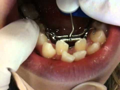Mejores 20 imgenes de orthodontic treatments en pinterest lower teeth expander getting braces on nirenblatt orthodontics solutioingenieria