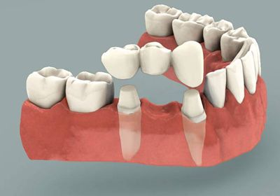 A bridge is a natural-tooth looking dental implant which is designed to replace a missing section of teeth. These custom-manufactured cosmetic dental implants restore contour of teeth and can help improve the effectiveness of teeth while maintaining the bite relationship between lower and upper teeth.
