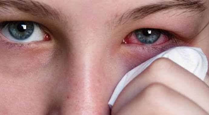 Göz iltihabı olarak da bilinen konjonktivit hastalığından korunmak için basit sağlık kurallarına uymak çok önemlidir. Eller sürekli yıkanmalı, enfekte kişilerin eşyaları kullanılmamaldır. Deniz veya havuza girecek kişilerin deniz gözlüğü kullanmaları tercih edilmelidir.