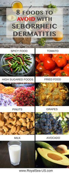 Seborrheic Dermatitis Diet Treatment: 8 Foods to Avoidwhit