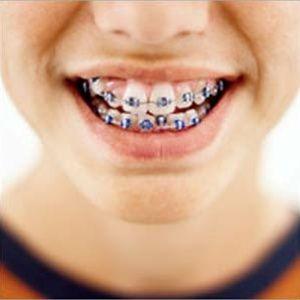 Crutches my braces orgasm dental teeth