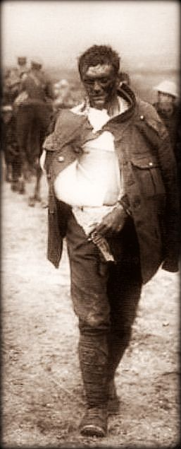 WW1. Wounded British soldier, photo detail. ©National Army Museum.