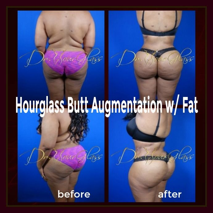 Notice her remarkable result after the Hourglass Butt Augmentation with Fat procedure. As you can see, it did great in enhancing the size as well as the overall shape of her buttocks which makes her body really voluptuous. Do you agree?