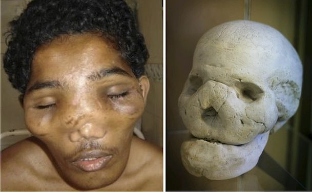 Photo on the left: 25-year-old man with Leontiasis ossea with frontal and maxillary bossing. Image from Wikipedia. Photo on the right: Skull with leontiasis ossea or lion face.  Image from Pinterest.