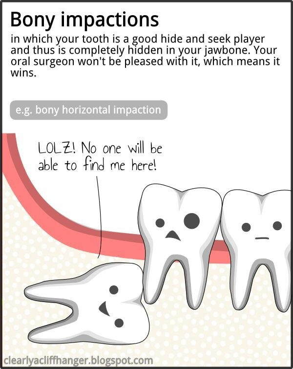 Bony impaction - Hide and seek wisdom tooth. Children's Dental Health Center - pediatric dentist in Stoughton, MA @ childrensdentalhealth.net