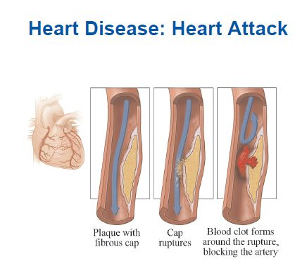 how to know if you have heart disease symptoms