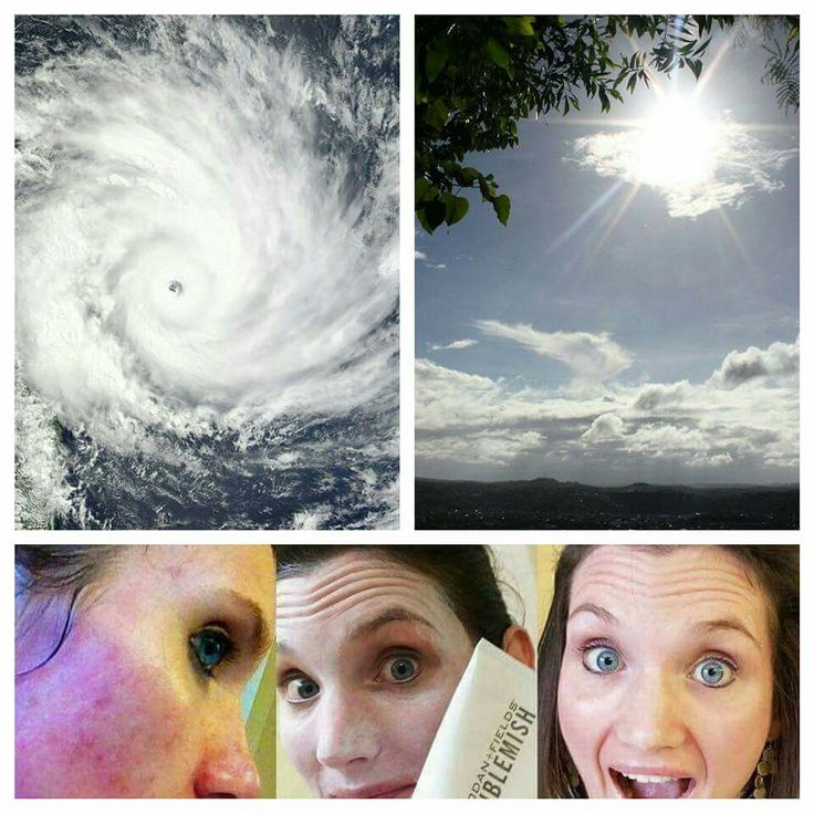 Your skin may look like a hurricane today, but it can look like sunshine tomorrow. Come on, decide TODAY on Rodan + Fields and choose how your skin will look tomorrow. Be the first to order your AMP It Up Regimen and receive a free gift of Micro-Dermabrasion Paste! https://vfoley1.myrandf.com