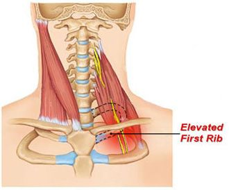 Diagram of an elevated first rib.  Shows some of the deeper cervical muscles that are commonly aggravated by this condition.
