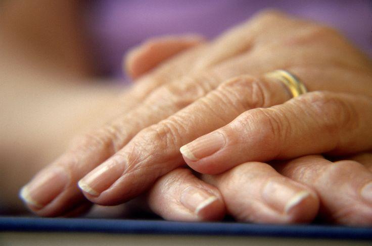 Rheumatoid Arthritis Symptoms Hands * Click image for more details.
