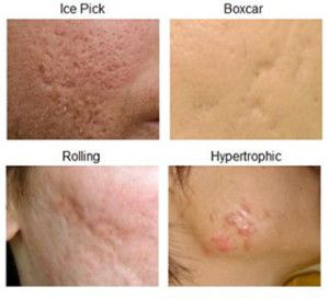 the 25+ best types of acne ideas on pinterest | fast acne, Cephalic Vein