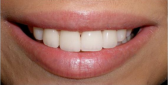 Huntington Beach dentist, Dr. Sebastian Gonzales, is your top general dentist in Huntington Beach specializing in cosmetic dental, dentures, and general dentistry.