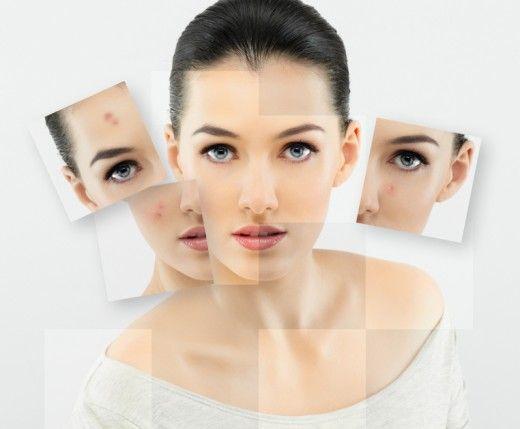 ansiktsmasker mot finnar