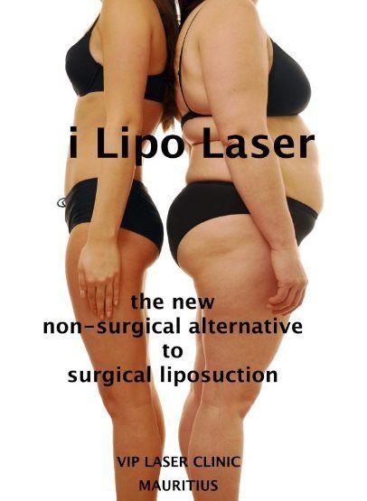 VIP LASER CLINIC - MAURITIUS - i Lipo Laser Slimming