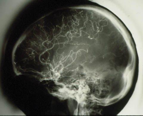 Cerebral Angiogram: Moya Moya disease.