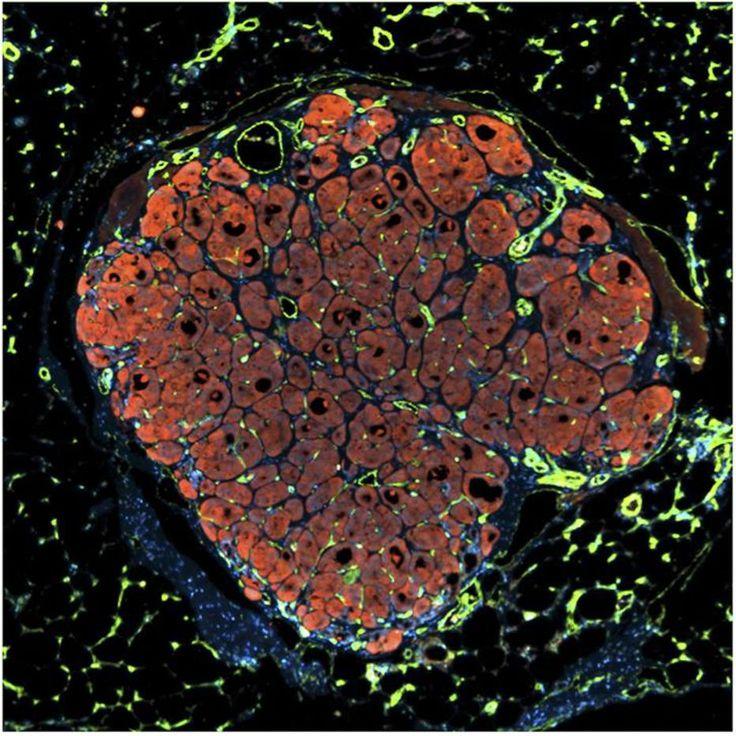 Chelsea Fortin, Kelly Stevens e Sangeeta Bhatia, do Instituto Koch - A imagem mostra um pequeno fragmento de tecido de fígado humano colocado em um camundongo com danos no fígado. As células de fígado humano (em vermelho) e os vasos sanguíneos humanos (em verde) do novo fígado se agruparam e começaram a crescer utilizando o sangue (em branco) do camundongo. Os cientistas esperam que no futuro implantes como esse sejam usados para reparar danos em fígados danificados por doenças hepáticas…
