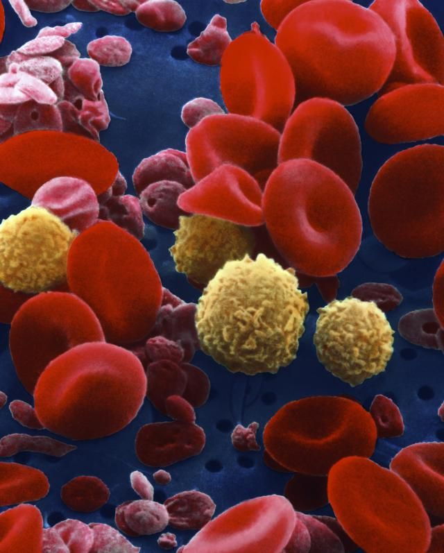 What is Aplastic Anemia?: Blood cells                                                                                                                                                                                 More
