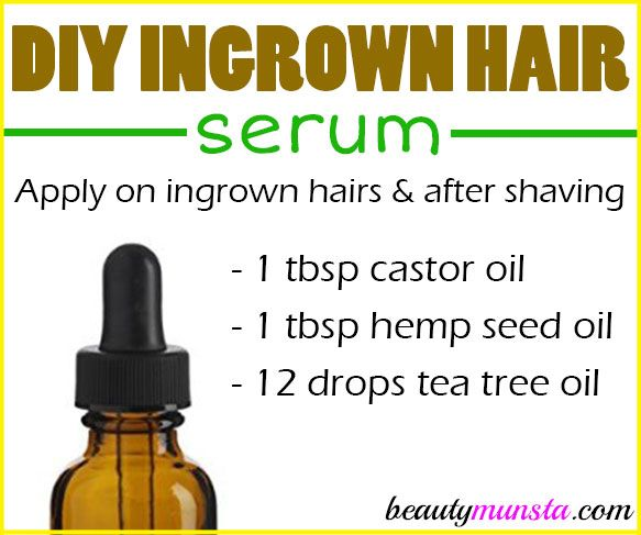 Try this DIY ingrown hair serum if you're constantly plagued by those pesky little ingrown hairs! Ingrown hairs can creep up on anyone who does hair removal, whether you shave, wax, pluck or whatever, you have a chance of getting ingrown hairs. There are quite a number of ingrown hair remedies such as this DIY …